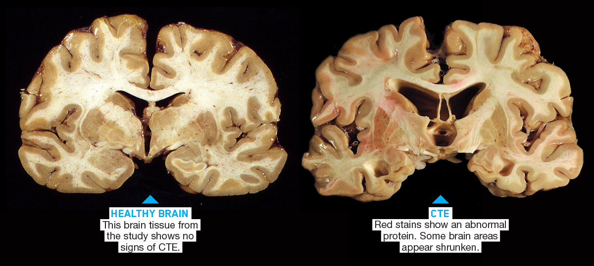 Cte Brain : In Football Cte Skeptics Like Merril Hoge ...
